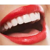 Dişlerimi Beyazlatayım Derken...