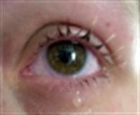 Gözlerin Kanlanmasını Gideren Maske