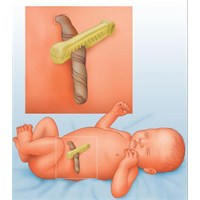 Yenidoğan Bebek Göbek Bağı Bakımı Nasıl Yapılır