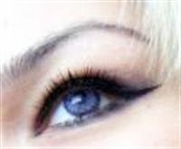 Göz Şişkinliğ İçin 5 Öneri