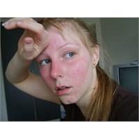 Yüzümüz Neden Kızarır?
