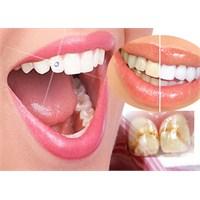 Dişlerdeki Sarı Lekelere Çözüm Önerileri