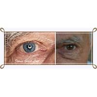 Gözler De Yaşlanır