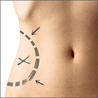 11 Soruda Liposuction