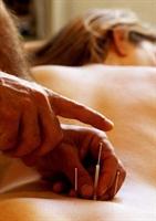 Manyetik Akupunktur
