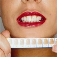 Diş Beyazlatmak İçin Doğal Karışımlar