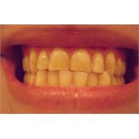 Stresin Uykudaki Hali: Diş Gıcırdatma