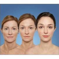 Sağlık: Yüzünüzden Yılların İzini Silin!