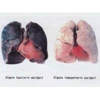 Sigara, Akciğer Kanserini Tetikliyor!