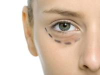 Gözaltı Peelingi İle Göz Morlukları Giderme