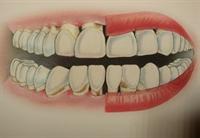 Diş Fırçalama Ve Ağız Temizliği Nasıl Yapılır