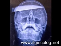 Kafasında 15 Cm Lik Bıçakla Hastaneye Yürüdü