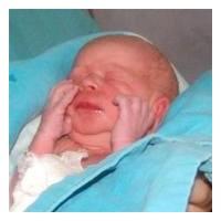 Sezeryanla doğan bebeklerin sağlığı