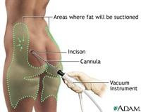 Tüm Yönleri İle Liposuction
