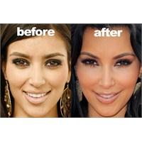 Kim Kardashian Estetikleri