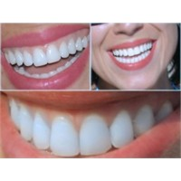 Nasıl Bembeyaz Dişlere Sahip Olabilirsiniz?