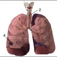 Akciğer Apsesi Nedir?