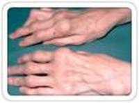Artritriçin Mucizeler Yaratan Kür