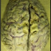 Beyin Tümörleri Nedir?