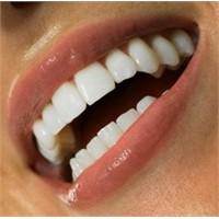 Yazın Sağlıklı Gülüşler İçin Öneriler