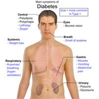 Şeker Hastalığı, Diyabet Nedir Belirtileri Tedavi