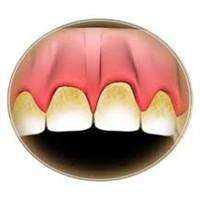 Diş Plağı Nedir Ve Nasıl Oluşur?