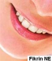 Protez Diş Artık Tarih Oluyor...