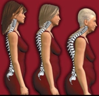 Kadınlarda Kemik Erimesi Belirtileri Ve Tedavisi