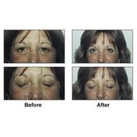 Göz Kapağı Estetik Ameliyatı İle Gençleşin