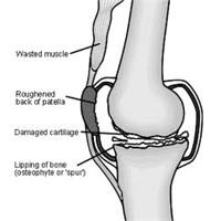 Diz Eklemi Artrozu Nedir