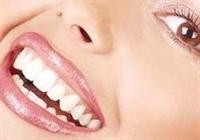 Doğal Ve Bedava Diş Beyazlatma Yolları