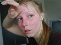 Yüzümüz Neden Ve Nasıl Kızarır ?