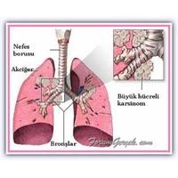 Kanser Çeşitleri Ve Kanser Belirtileri