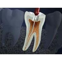 Diş'e Kanal Tedavisi Nasıl Yapılır?