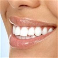 Beyaz Dişler Artık Hayal Değil!