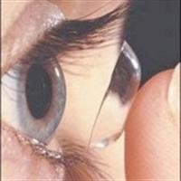Kontakt Lens Nedir?