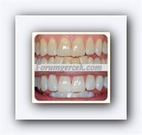 Beyaz Dişler İçin Pratik Yöntemler