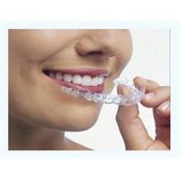 Diş Teli Takmadan Güzel Gülüşler Mümkün