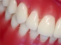 Hasta Diş Etleri İçin