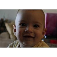 Pilor Stenozu - Bebeklerde Aşırı Kusma