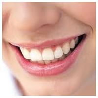 Gülüş Tasarımı (Smile Design) Estetiği Bilgileri
