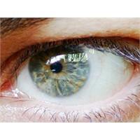Gözlerimizin İkiside Farklı!