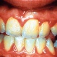 Diş Eti Büyümesi Hakkında