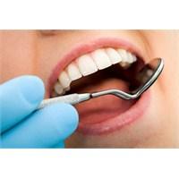 Yirmilik Dişler Kabusunuz Olmasın