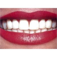 Hassas Dişler İçin Profesyonel Tavsiyeler