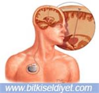 Parkinson Ve Beyin Pili Tedavisi