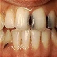 Diş Çürüklerini Engellemek Mümkünmüdür