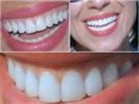Dişleri Parlatmak İçin Bir Fikir