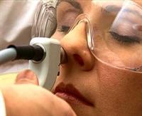 Alerjik Rinit te Yeni Tedavi Yöntemi Rhinolight