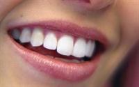Suna Dumankaya Dişleri Beyazlatmak İçin